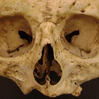 Death Perception: The Science of Forensic Anthropology Image
